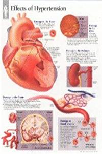 Effects of Hypertension chart: Laminated Wall Chart ePub download